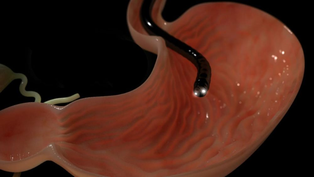 esophagogastroduodenoscopy or egd Esophagogastroduodenoscopy (egd) what is an egd upper endoscopy, also known as egd, is a procedure in which a thin scope with a light and camera at its tip is used to look inside the upper digestive tract — the esophagus, stomach, and first part of the small intestine, called the duodenum.